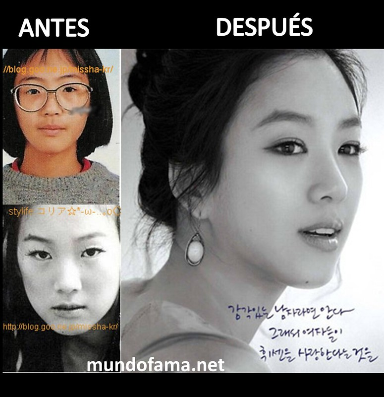 KOREAN ACTRESS BEFORE AND AFTER PLASTIC SURGERY ACTRICES COREANAS CON CIRUGIA PLASTICA (6)