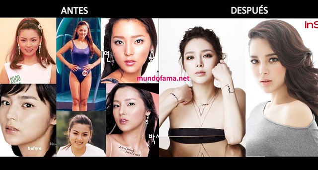 KOREAN ACTRESS BEFORE AND AFTER PLASTIC SURGERY ACTRICES COREANAS CON CIRUGIA PLASTICA (9)