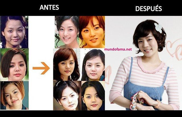 KOREAN ACTRESS BEFORE AND AFTER PLASTIC SURGERY ACTRICES COREANAS CON CIRUGIA PLASTICA (2)