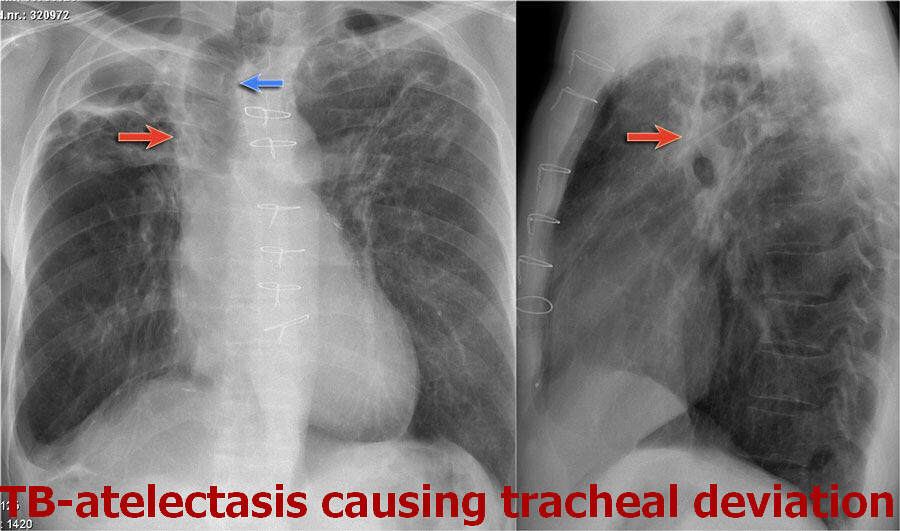 TB-atelectasis causing tracheal deviation_result