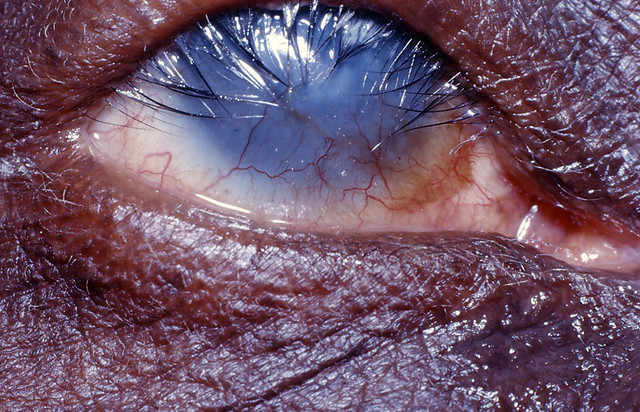 Corneal Blindness With Extensive Vascularization Due To