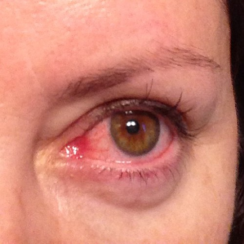 Seems the raging chest cold wasn't enough for my body this week ... I had to get pink eye too. FML