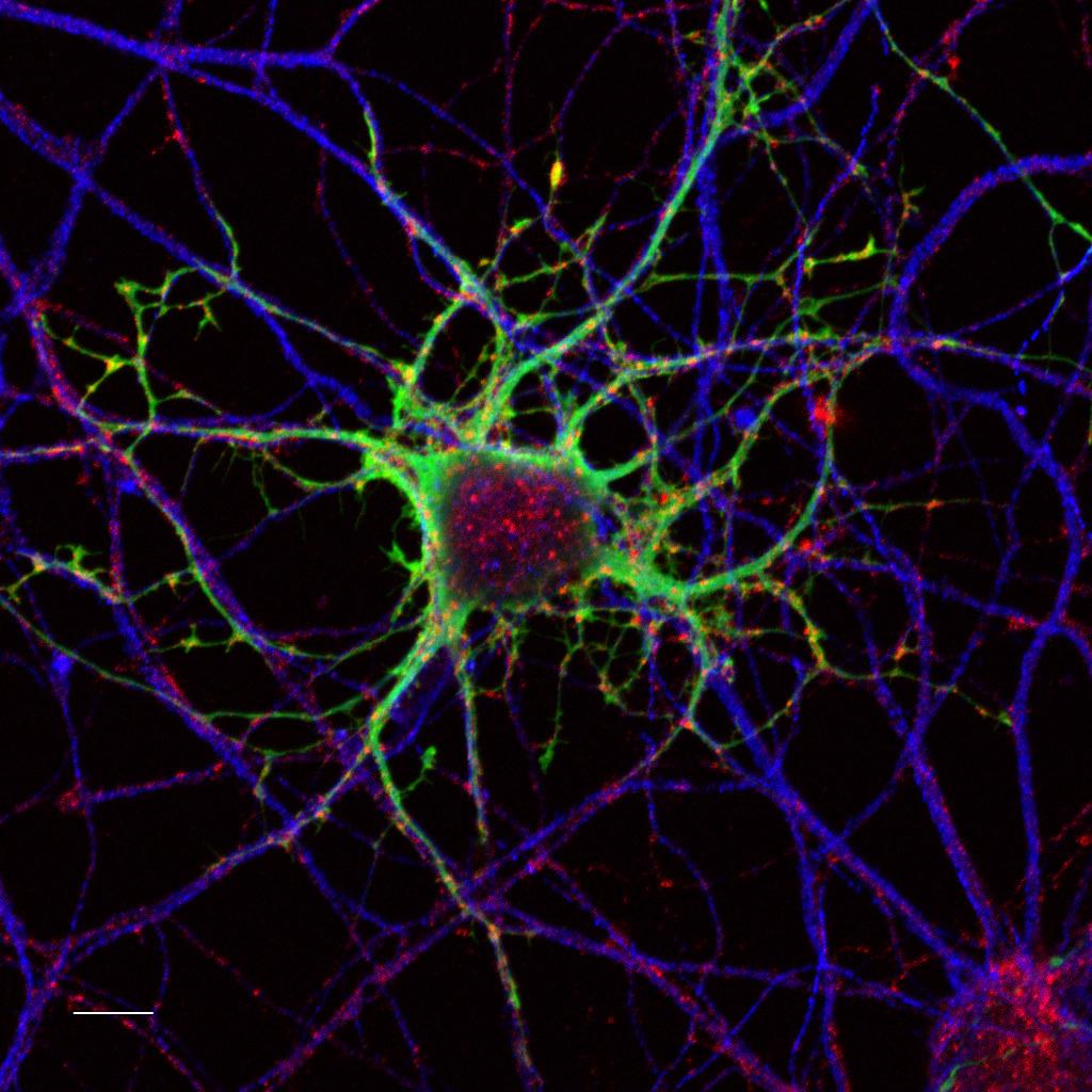 Neurons, confocal fluorescence microscopy