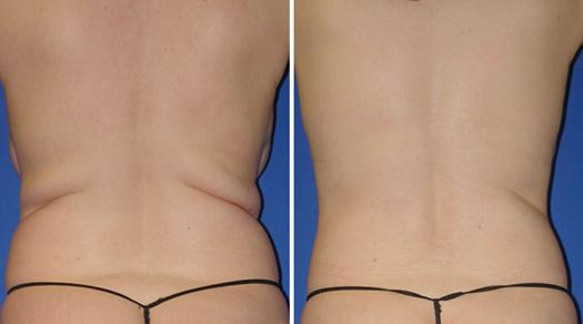 patient results waistline