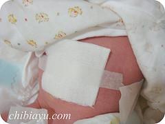 赤ちゃんのへその緒 消毒方法