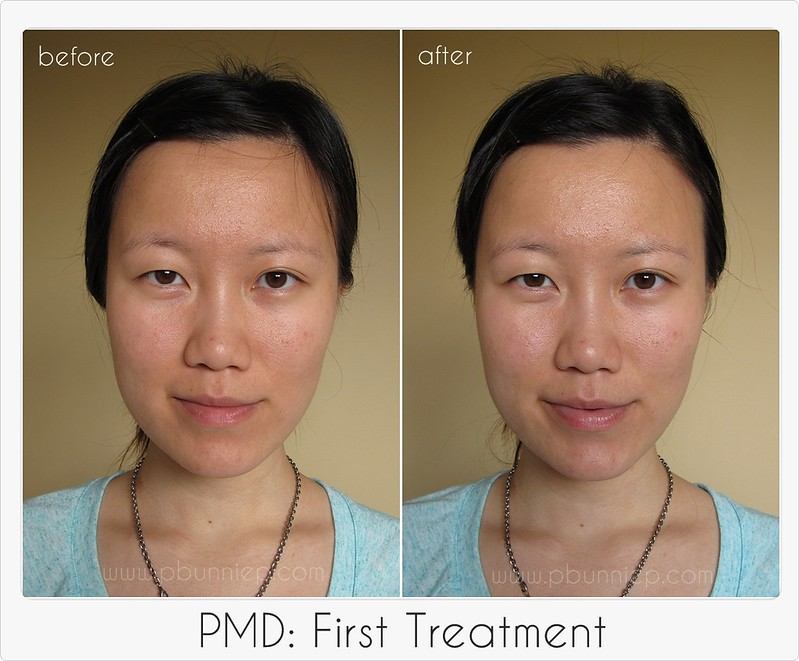 PMD First treatment-01