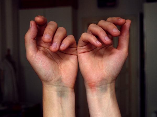 verstauchte-Handgelenke