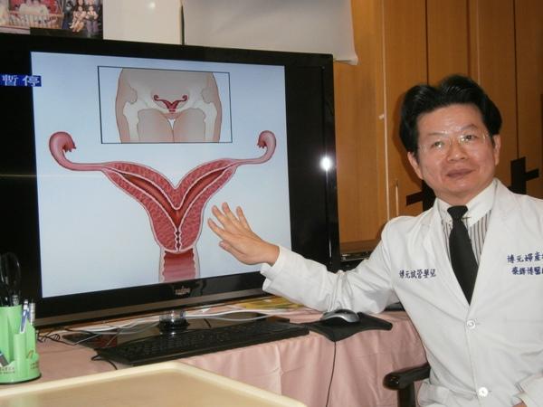 墮胎潮提早在八月
