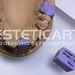 laboratorio_de_protese_dentaria_cad_cam-532