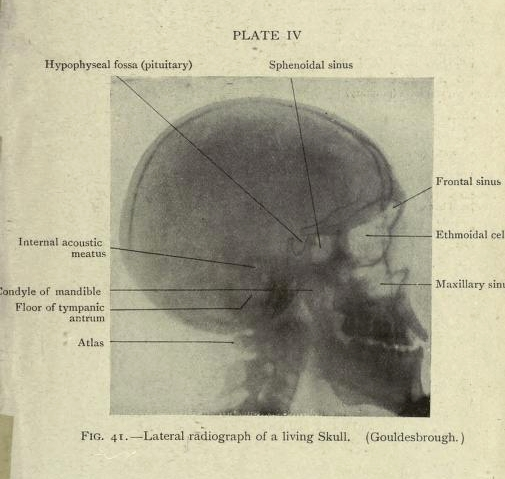 Anatomically labelled x ray images 1920 the public domain review download right click on image or see source for higher res versions ccuart Choice Image