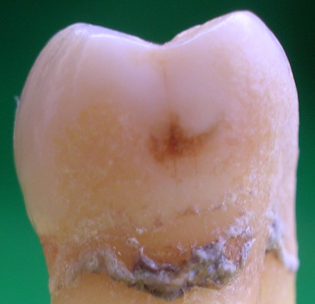 Cara interproximal de una muela con el esmalte atacado por los ácidos de las bacterias