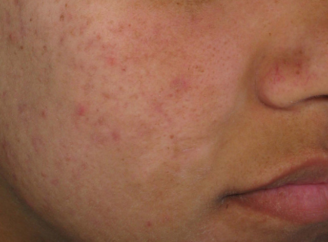 Types of Rosacea: Bumps and Pimples | Flickr - Photo Sharing!