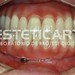 laboratorio_de_protese_dentaria_cad_cam-563