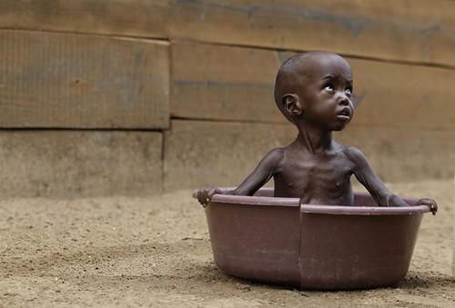 ss-110712-africa-famine-002_ss_full