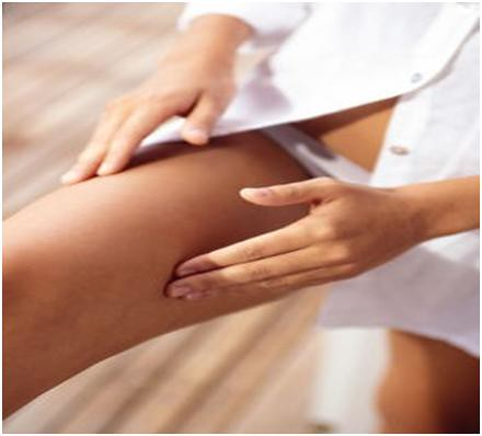 Ways to avoid rashes between your legs