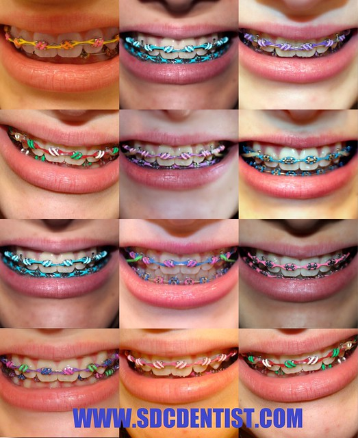 จัดฟัน ดัดฟัน