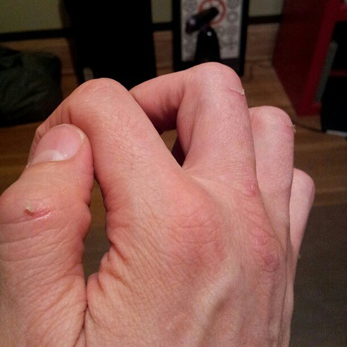 Test hands