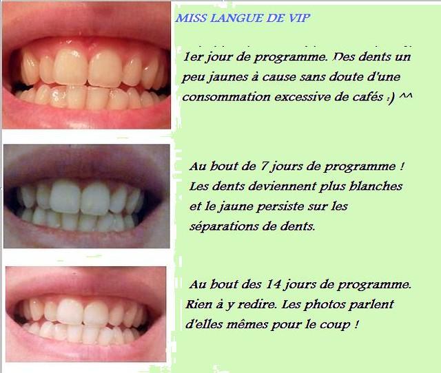 des dents plus blanches c 39 est possible avec crest white miss langue de vip. Black Bedroom Furniture Sets. Home Design Ideas