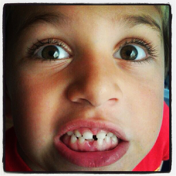 Owen tooth fell out today ! First lost tooth for o-dog!!