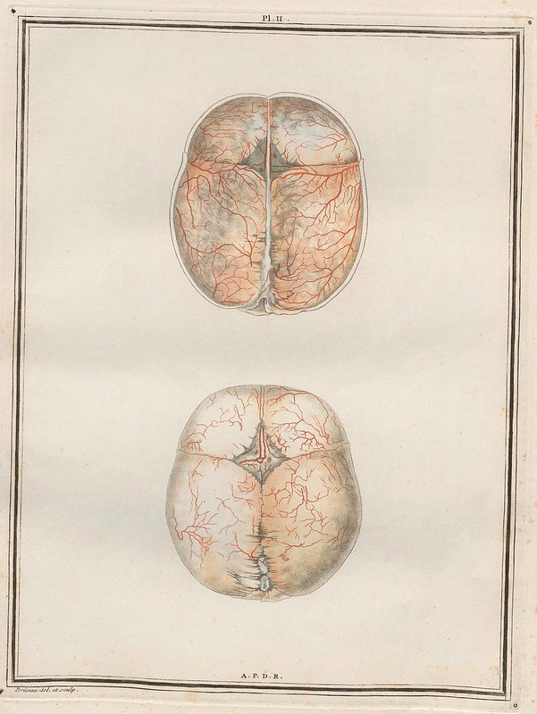 2 x anatomical cross-sections of a brain