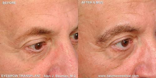 8053813887 aef3465fc7 Eyebrow Transplantation