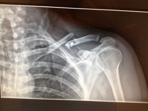 Shattered Collarbone