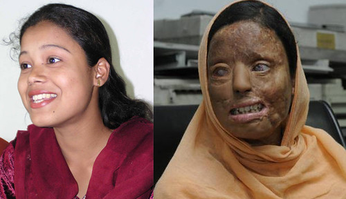 Before and after picture of the victim - Sonali Mukherjee