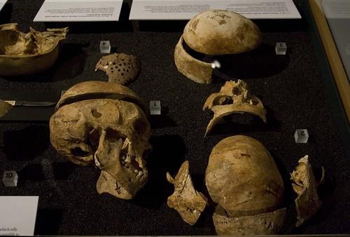 Experimented skulls