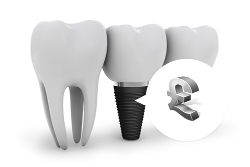Dental-Implants-Now-at-Affordable-Rates