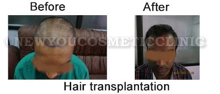 before-after-hair-transplantation2