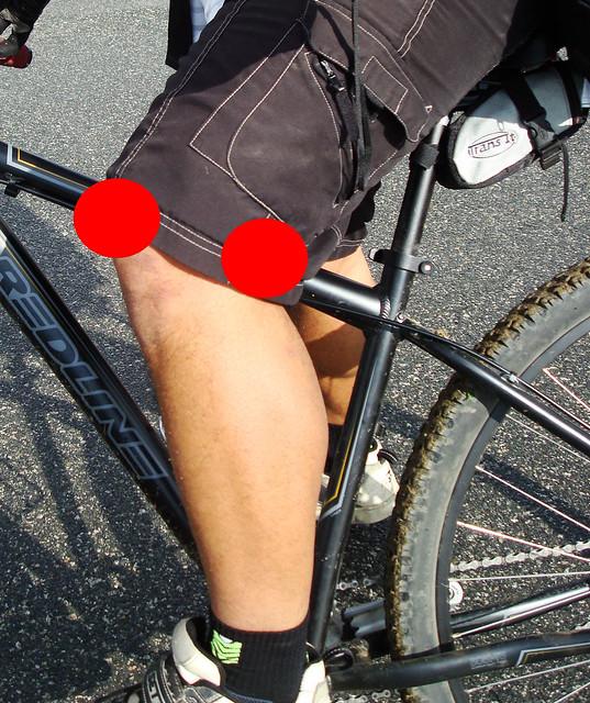 knee pain1