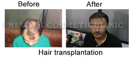 before-after-hair-transplantation1