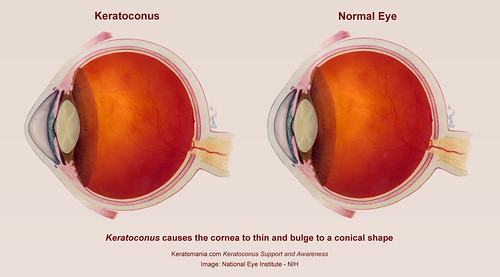 Keratoconus Eye Diagram by Keratomania, Based on an image from National Eye Institute NIH