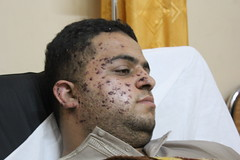An injured journalist from Al Aqusa TV, Gaza