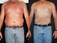 What time of the year is best to get liposuction done? Dr. Joel Schlessinger shares.