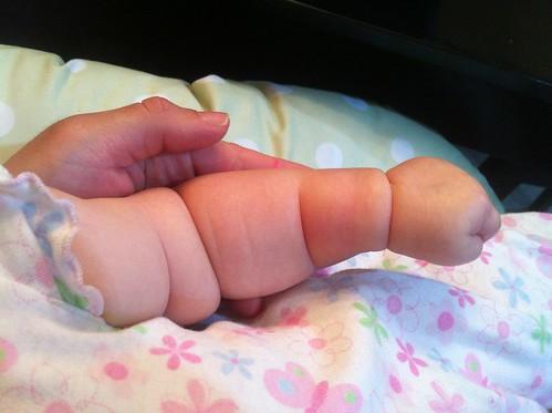 Chubby Arm