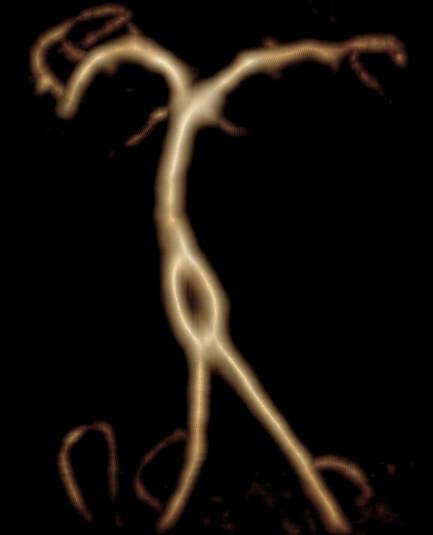 Fenestración tronco basilar