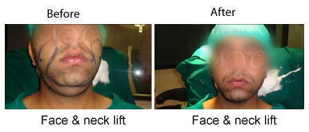 face and neck lift surgery before and after