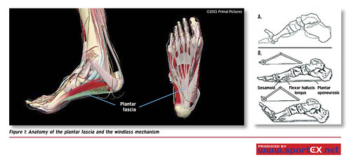 Heel Spurs And Plantar Fasciitis..Plantar fasciitis, Anatomy of the plantar fascia and the windlass mec…