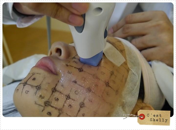 電波拉皮,全臉拉提,鬆弛拉提,美麗晶華,電波拉皮費用,電波拉皮副作用,電波拉皮價格,法令紋,法令紋如何消除,抗老,