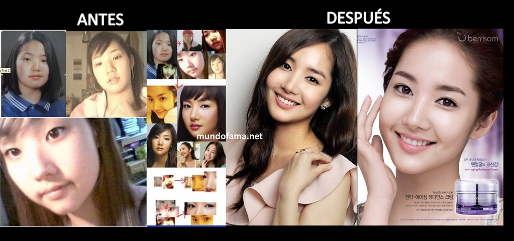 Korean Actress Before And After Plastic Surgery Actrices C Flickr