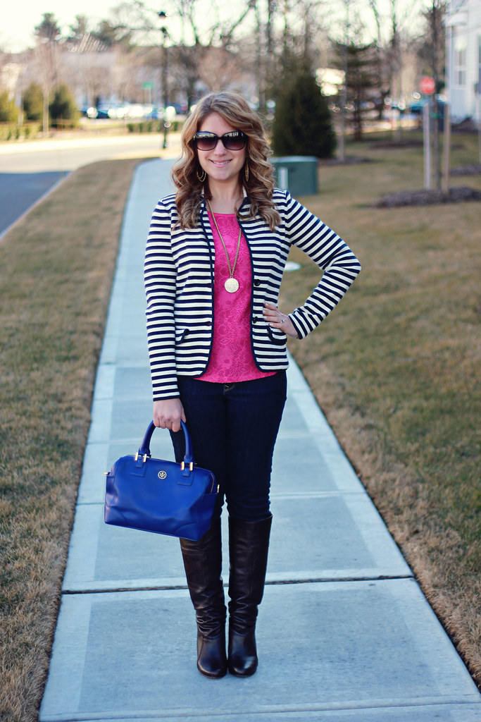 Lace and Stripes Outfit Casual