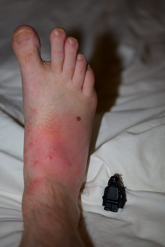 Foot savaged by mosquitos. Swollen. Normal sized person shown for comparison.