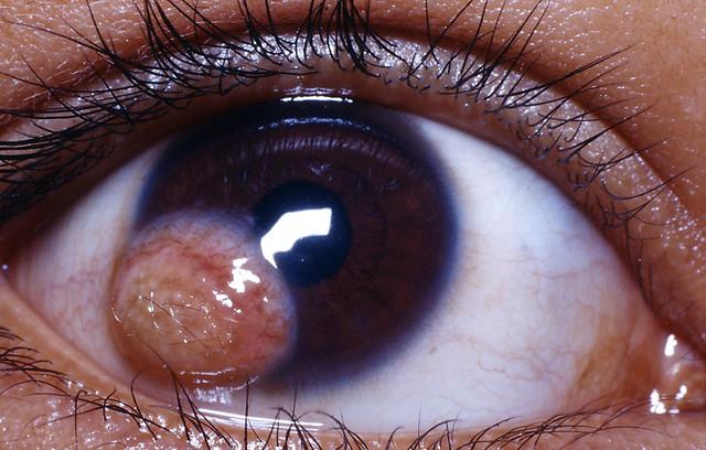 Limbal dermoid cyst in... Dermoid Cyst Eye