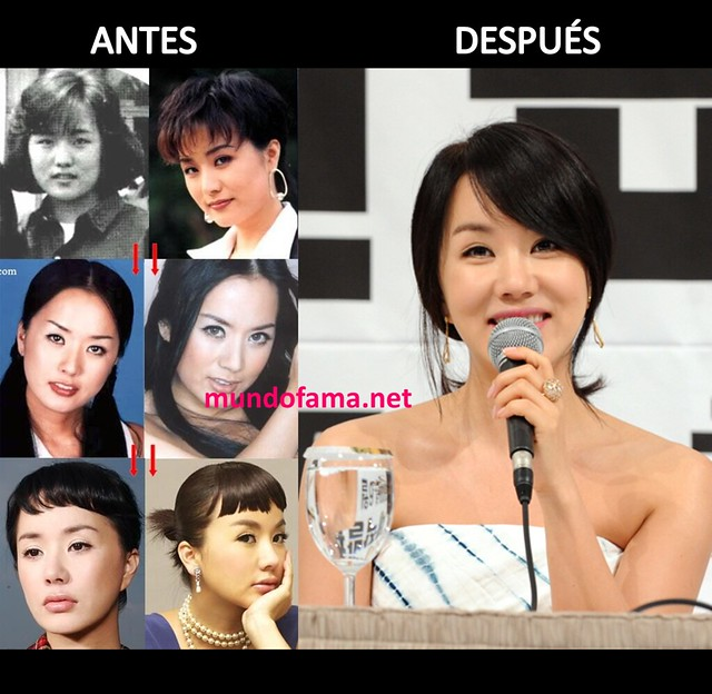 KOREAN ACTRESS BEFORE AND AFTER PLASTIC SURGERY ACTRICES COREANAS CON CIRUGIA PLASTICA (7)