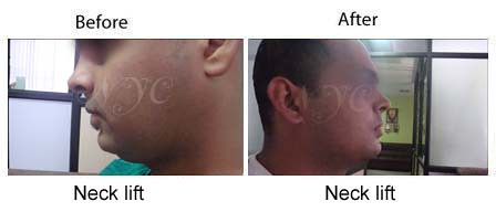 neck lift surgery before and after