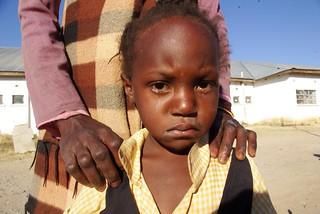 Sick child at Kalomo District Hospital - the hospital had no ORS