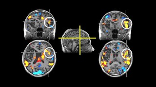 Sean Maloney stroke brainscan