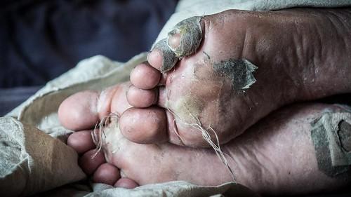 郭文吉拍攝, 2013/4/7 這是隊伍裡的大哥 布農族 勇士 那布 在第四天早晨裡被我拍攝的雙腳,腳底板已長滿水泡,但還是盡力地走著每一步!!!