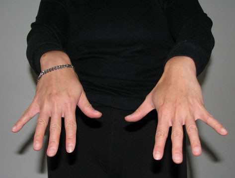 Finger Flick Stretch - Open